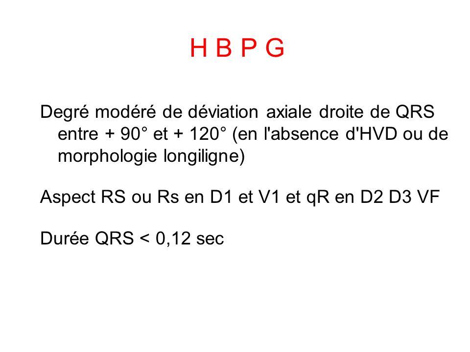H B P G Degré modéré de déviation axiale droite de QRS entre + 90° et + 120° (en l absence d HVD ou de morphologie longiligne)