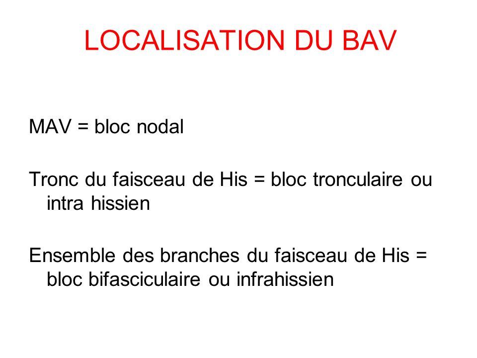 LOCALISATION DU BAV MAV = bloc nodal