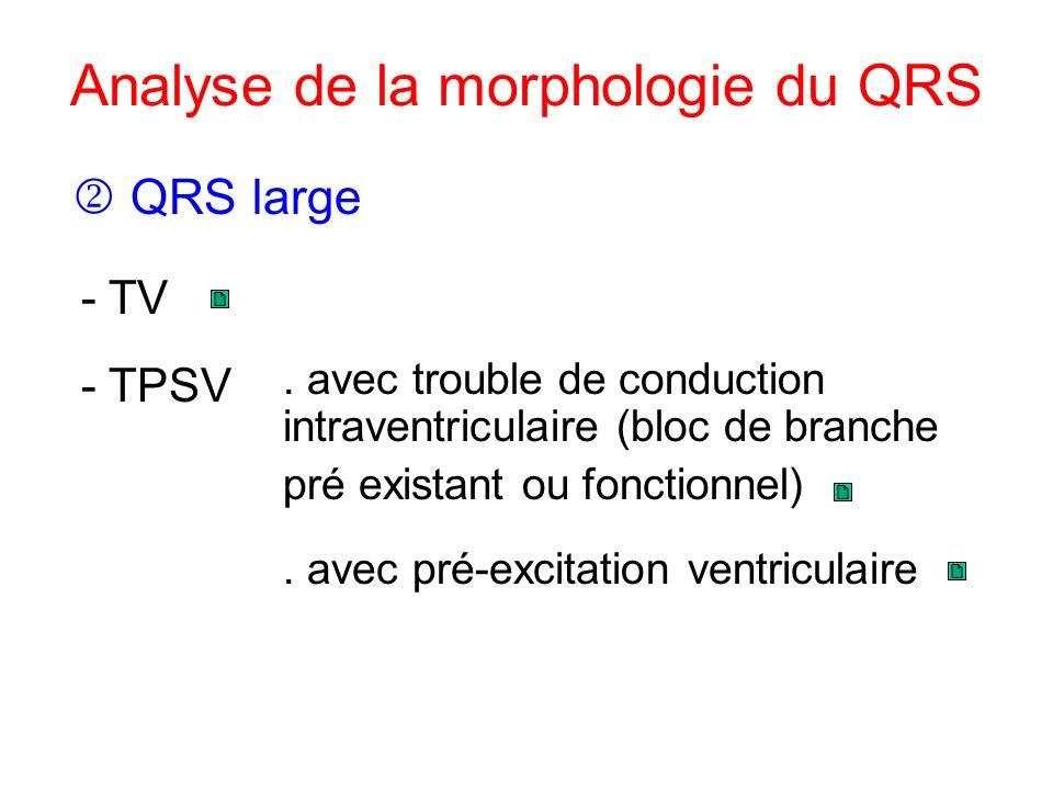 Analyse de la morphologie du QRS