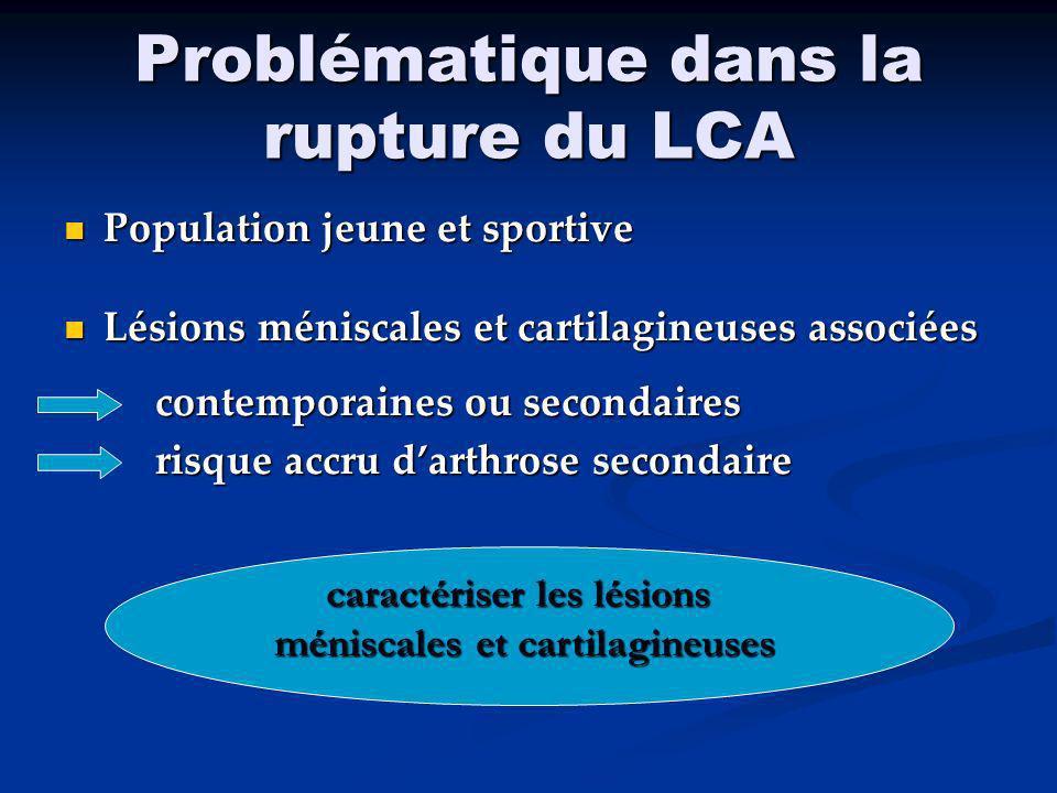 Problématique dans la rupture du LCA
