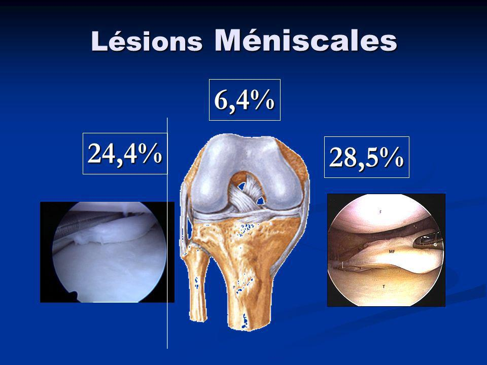 Lésions Méniscales 6,4% 24,4% 28,5%