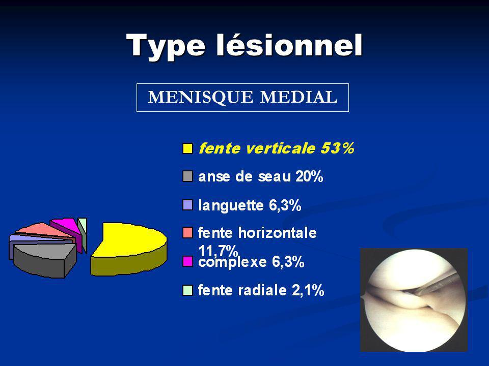 Type lésionnel MENISQUE MEDIAL