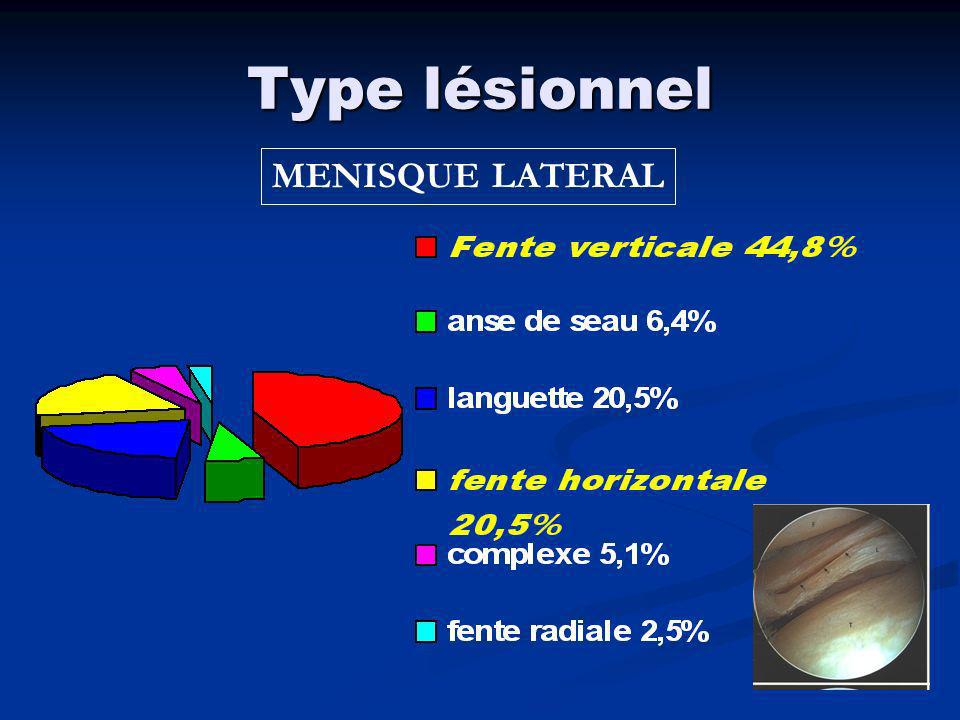 Type lésionnel MENISQUE LATERAL