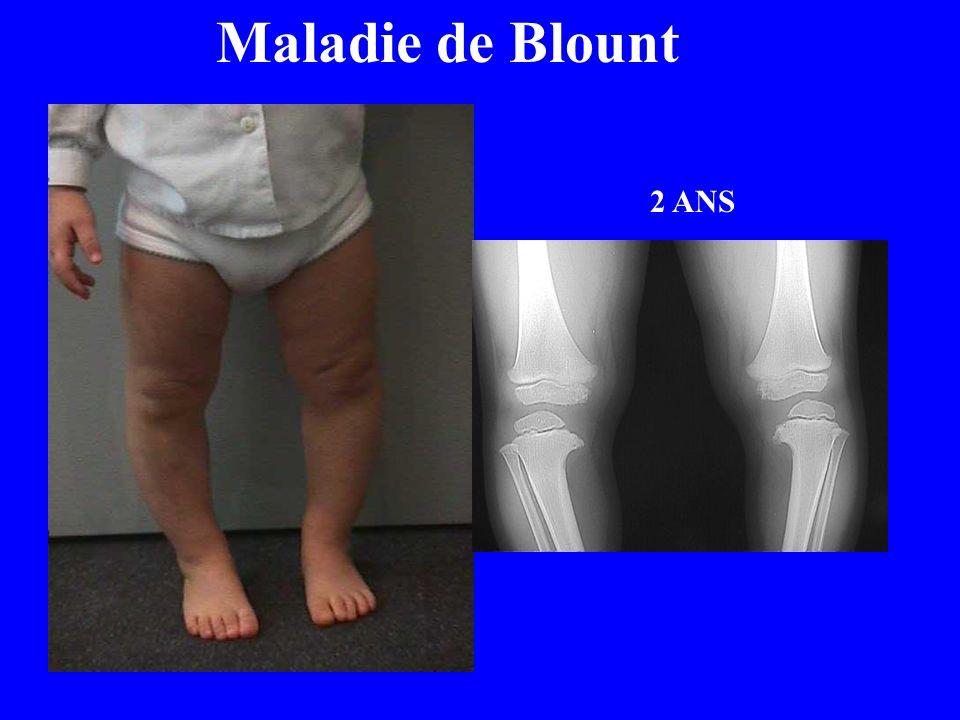 Maladie de Blount 2 ANS