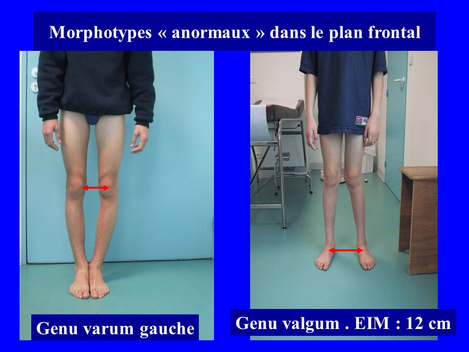 Morphotypes « anormaux » dans le plan frontal
