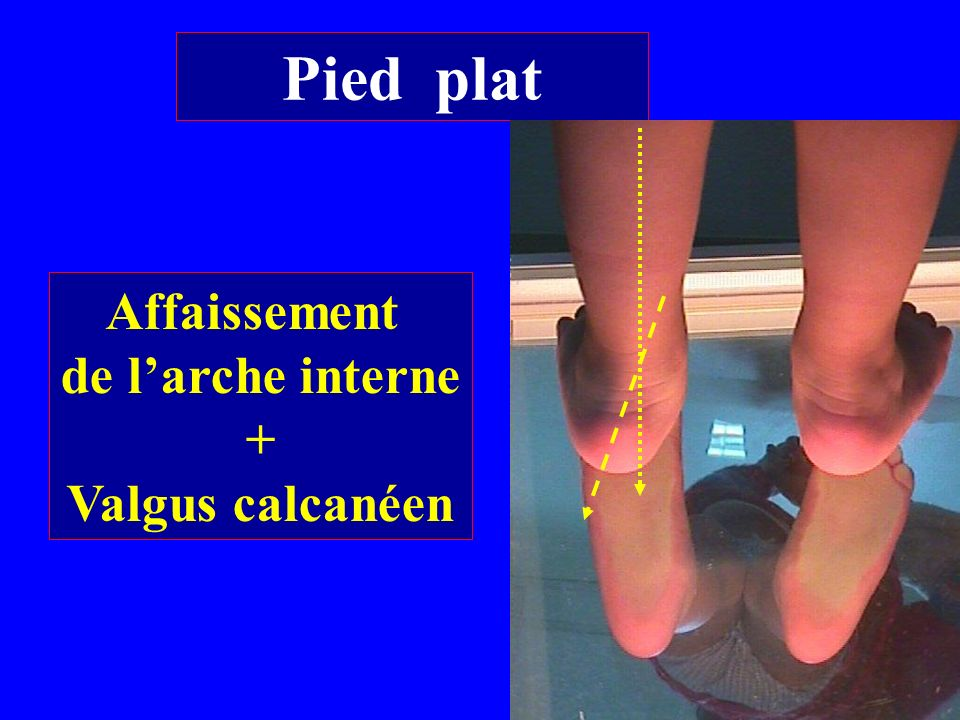Pied plat Affaissement de l'arche interne + Valgus calcanéen