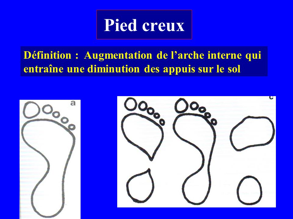 Pied creux Définition : Augmentation de l'arche interne qui