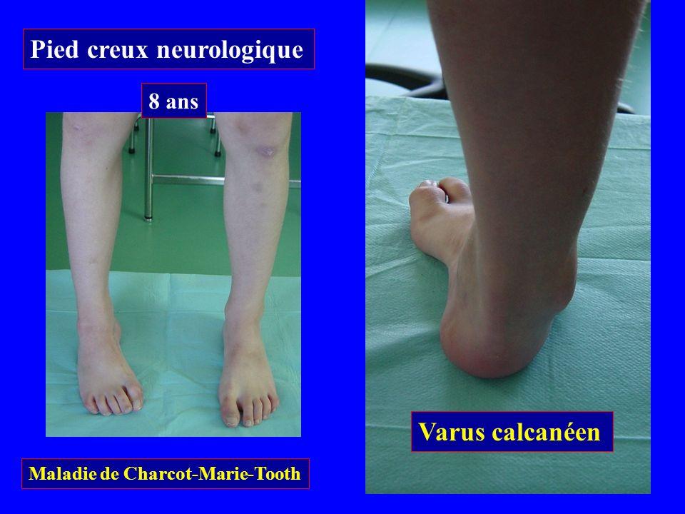 Pied creux neurologique