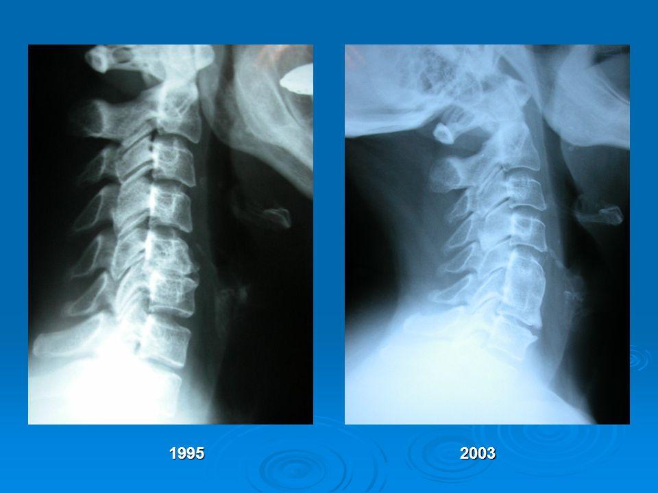 1995 2003