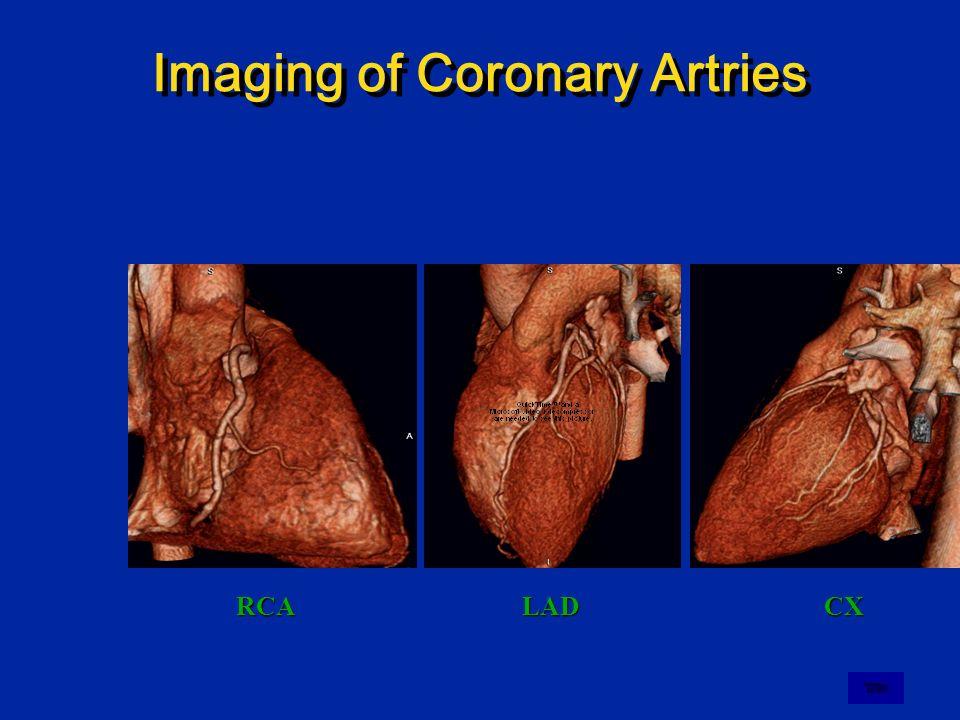Imaging of Coronary Artries
