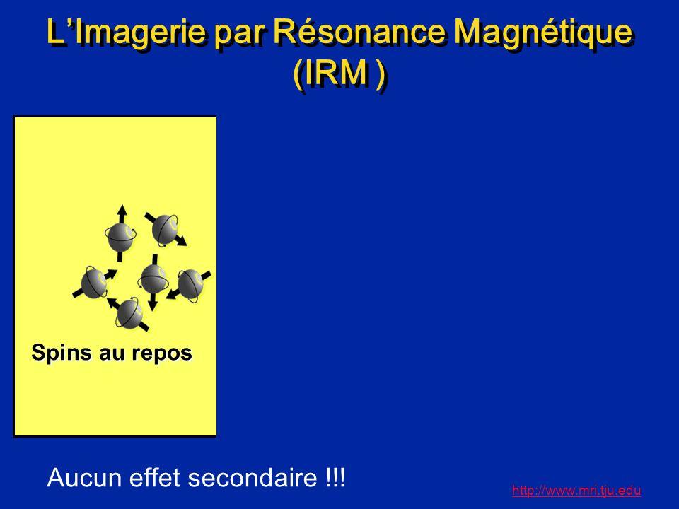 L'Imagerie par Résonance Magnétique (IRM )