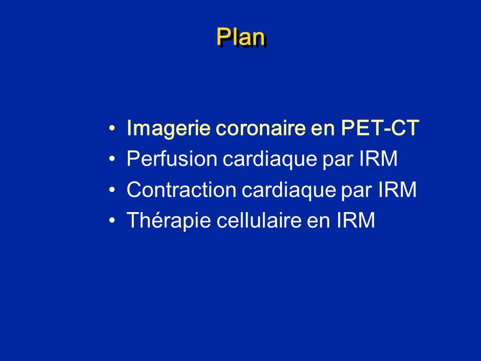 Plan Imagerie coronaire en PET-CT Perfusion cardiaque par IRM