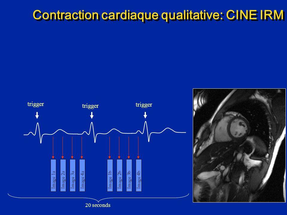 Contraction cardiaque qualitative: CINE IRM