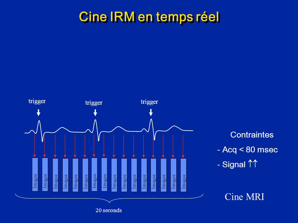 Cine IRM en temps réel Cine MRI Contraintes Acq < 80 msec Signal 