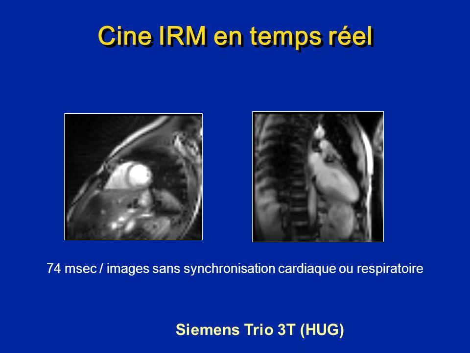74 msec / images sans synchronisation cardiaque ou respiratoire
