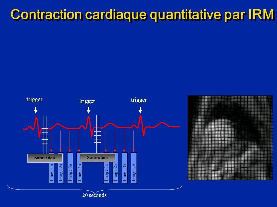 Contraction cardiaque quantitative par IRM