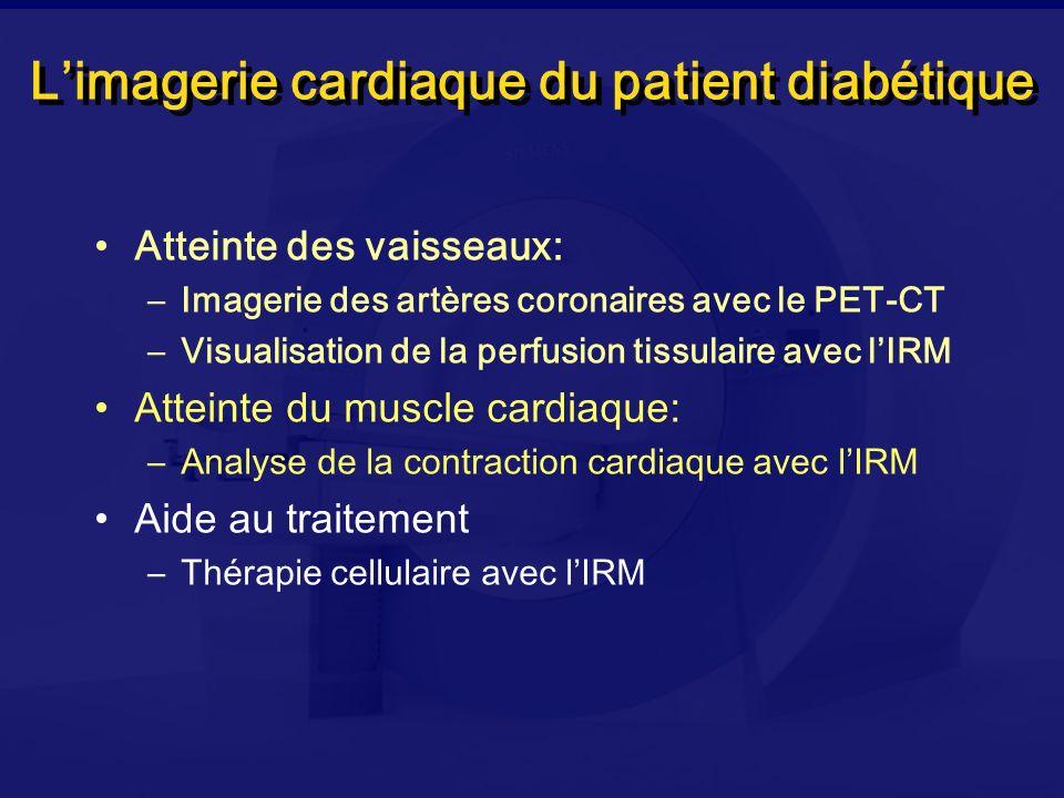 L'imagerie cardiaque du patient diabétique