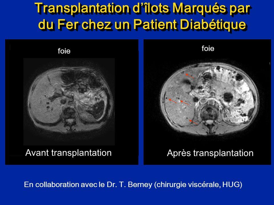 Transplantation d'îlots Marqués par du Fer chez un Patient Diabétique