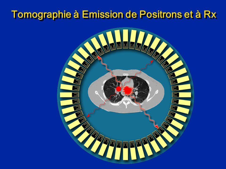 Tomographie à Emission de Positrons et à Rx