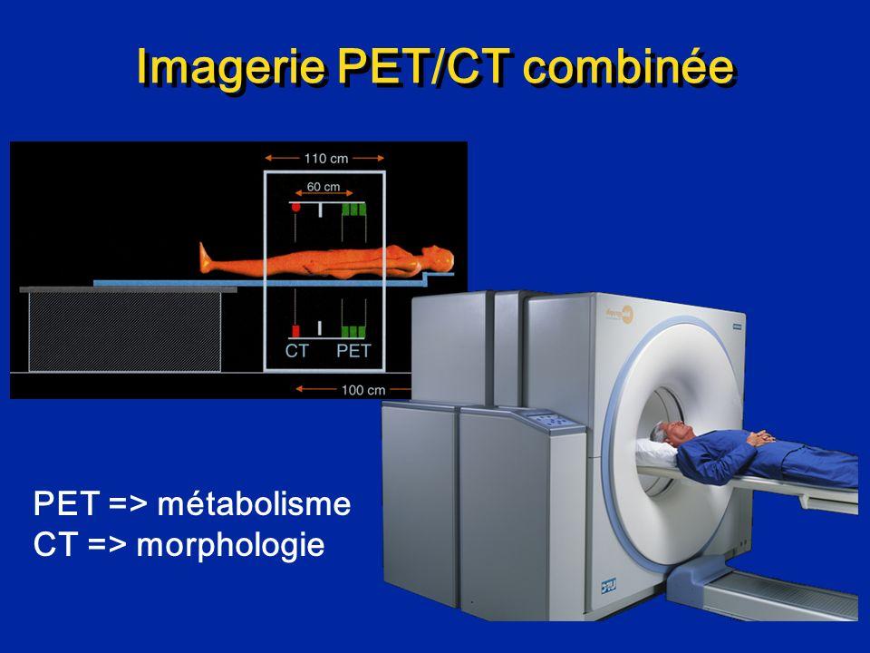 Imagerie PET/CT combinée