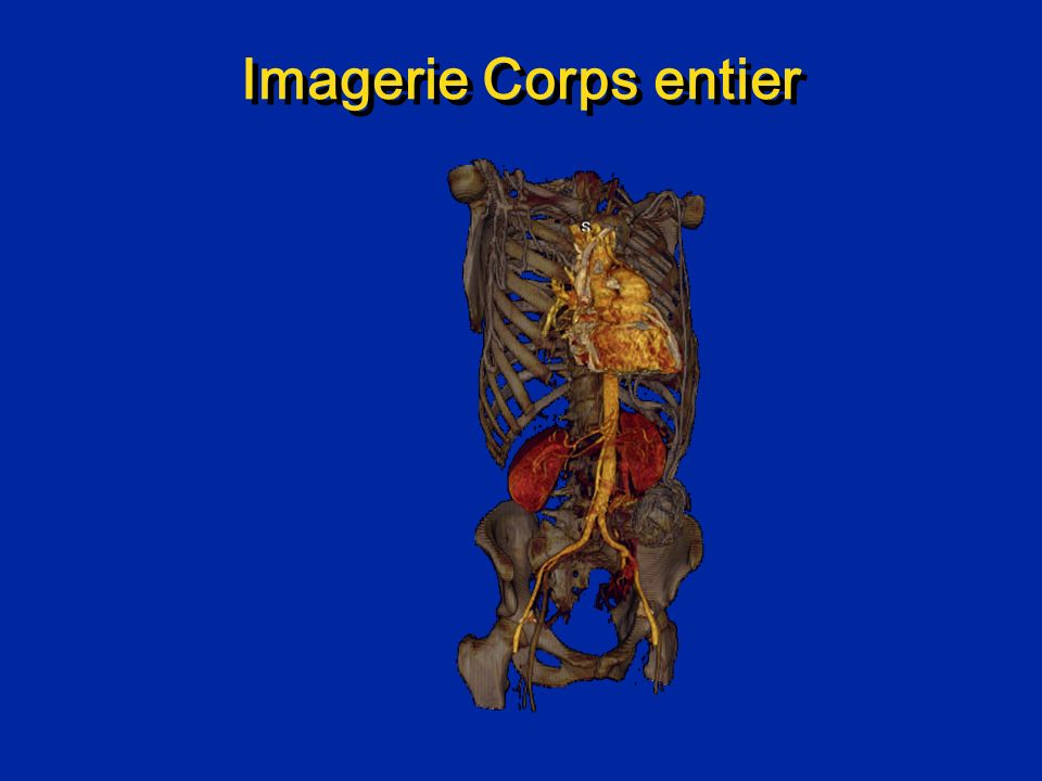 Imagerie Corps entier UCLA