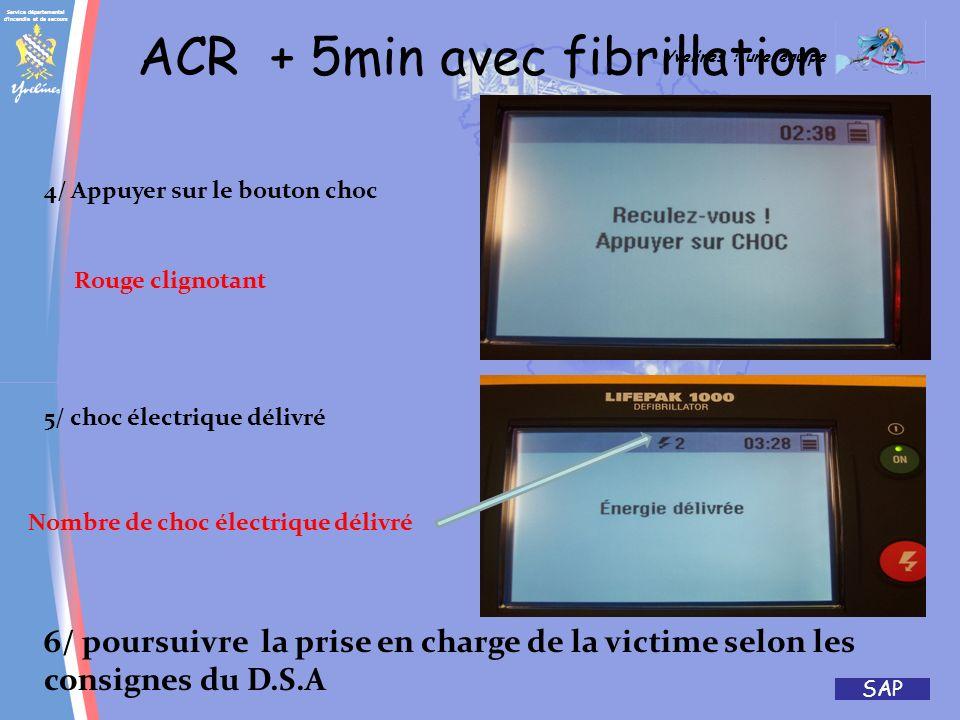 ACR + 5min avec fibrillation