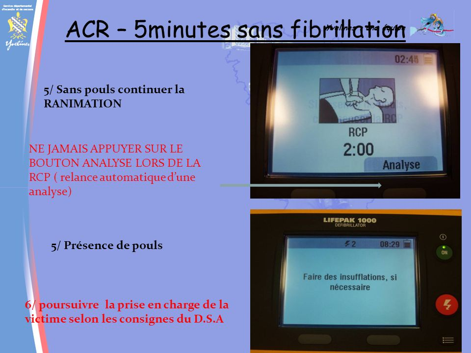 ACR – 5minutes sans fibrillation