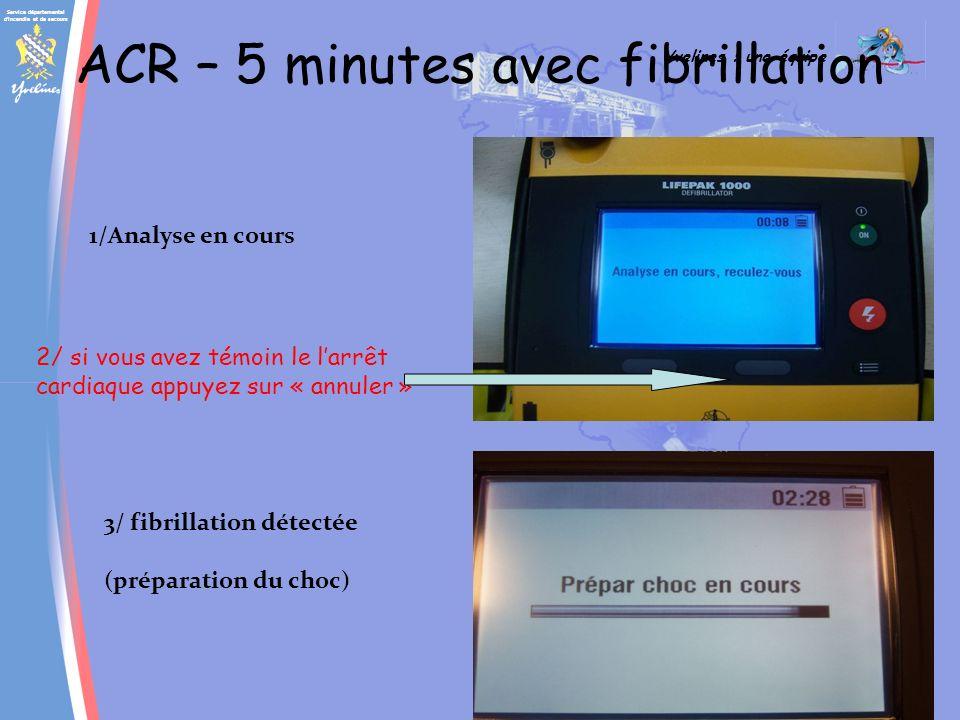 ACR – 5 minutes avec fibrillation