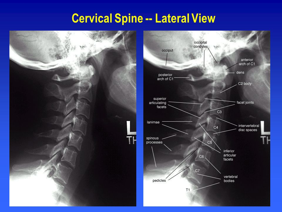 Cervical Spine -- Lateral View