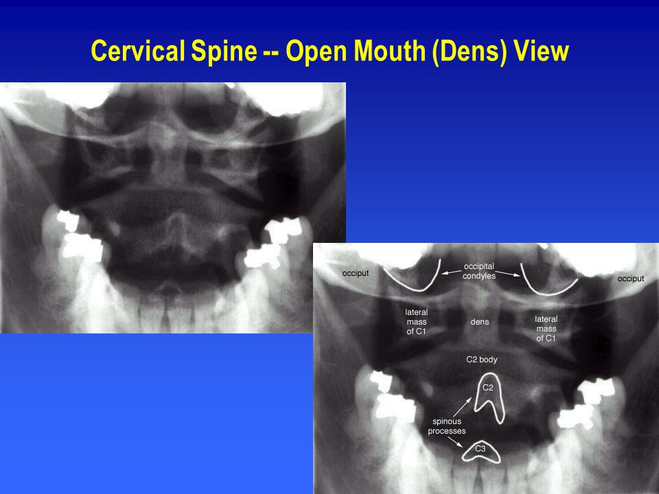 Cervical Spine -- Open Mouth (Dens) View