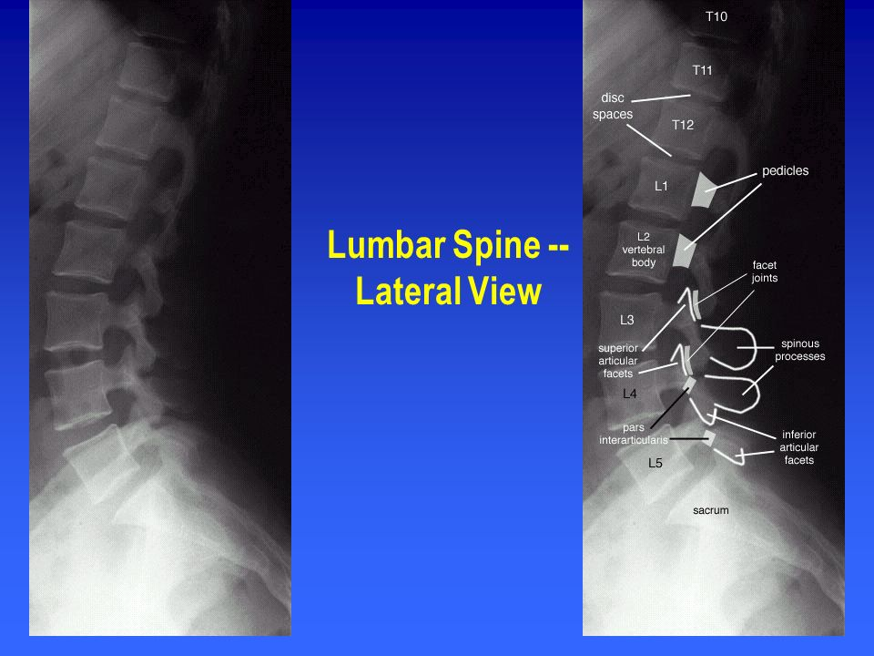 Lumbar Spine -- Lateral View