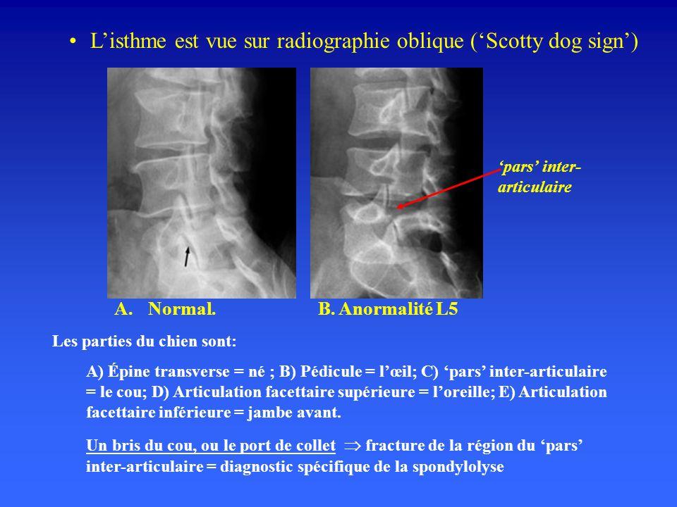 L'isthme est vue sur radiographie oblique ('Scotty dog sign')