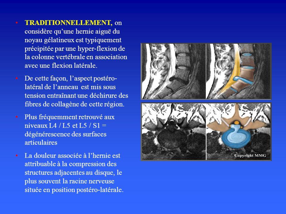 TRADITIONNELLEMENT, on considère qu'une hernie aiguë du noyau gélatineux est typiquement précipitée par une hyper-flexion de la colonne vertébrale en association avec une flexion latérale.