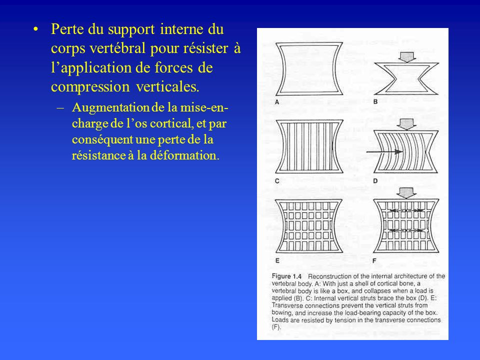 Perte du support interne du corps vertébral pour résister à l'application de forces de compression verticales.