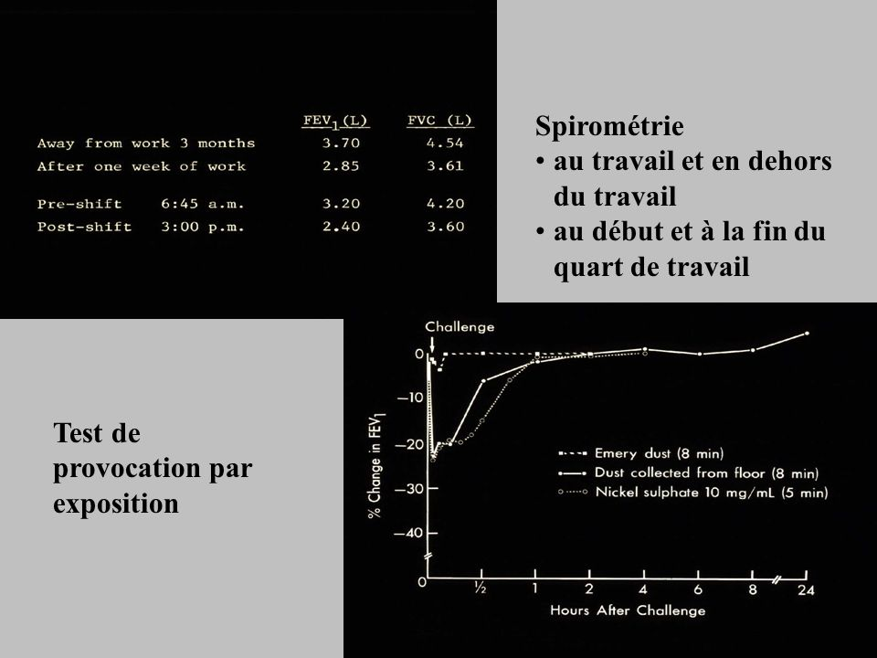 Spirométrie au travail et en dehors du travail. au début et à la fin du quart de travail.