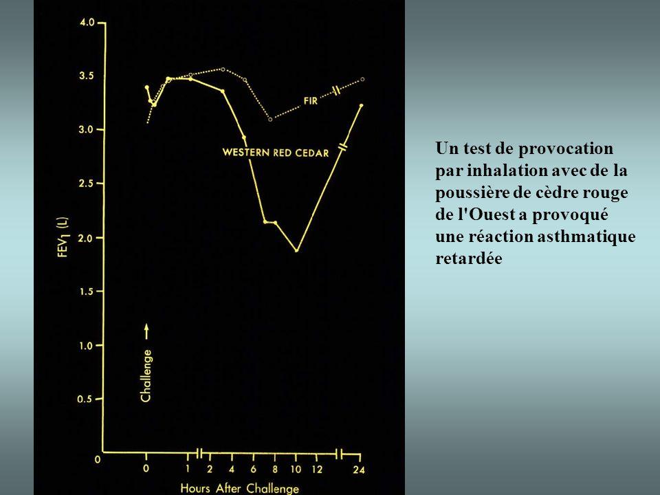 Un test de provocation par inhalation avec de la poussière de cèdre rouge de l Ouest a provoqué une réaction asthmatique retardée