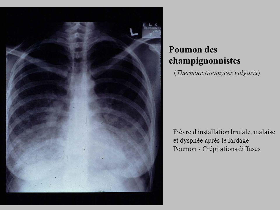 Poumon des champignonnistes