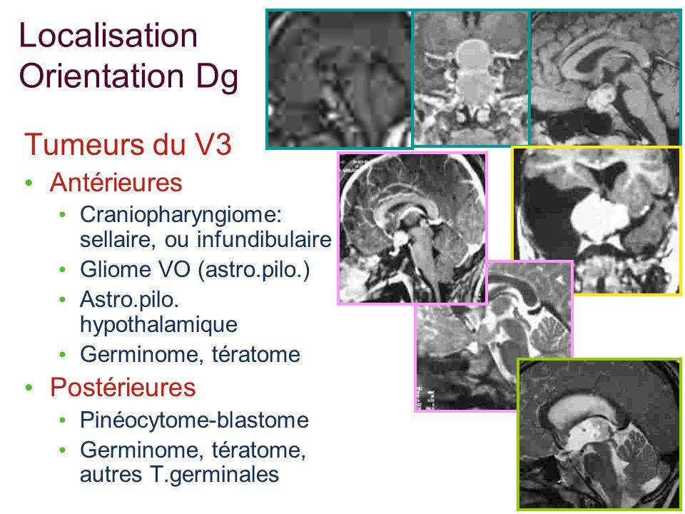Localisation Orientation Dg