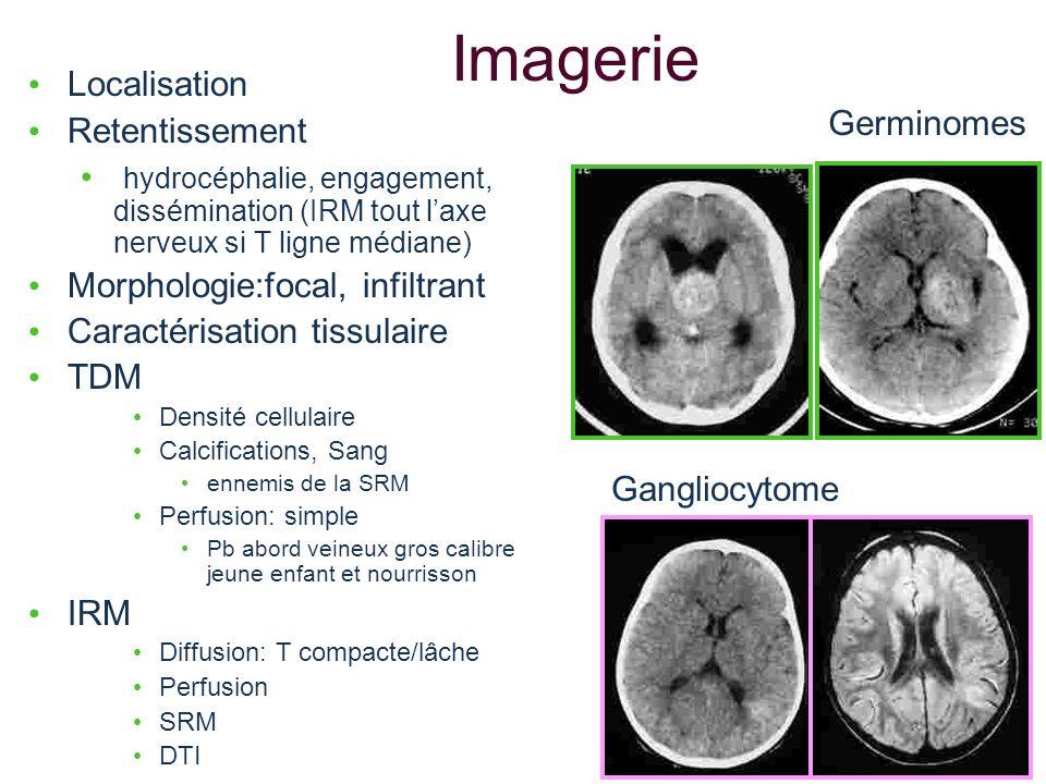Imagerie Localisation Retentissement Germinomes
