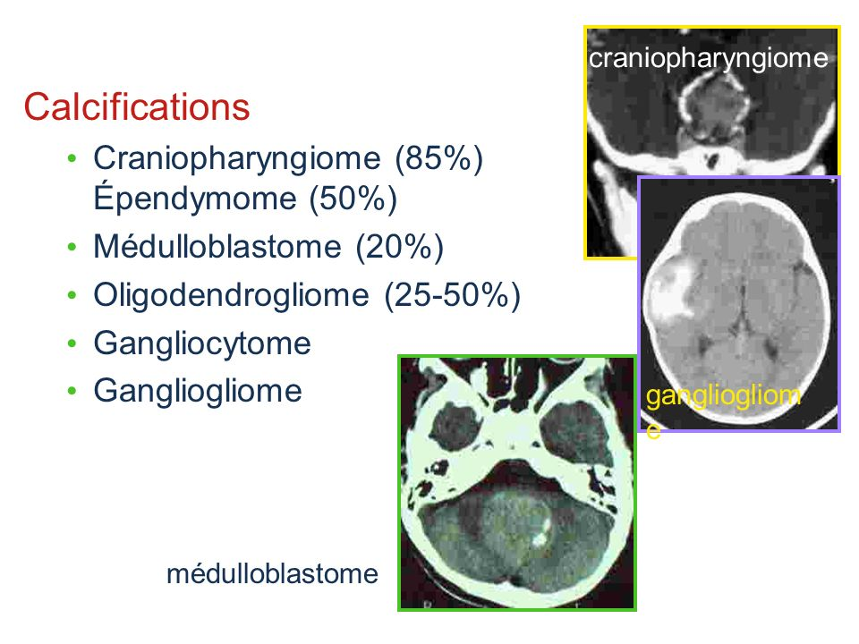 Calcifications Craniopharyngiome (85%) Épendymome (50%)