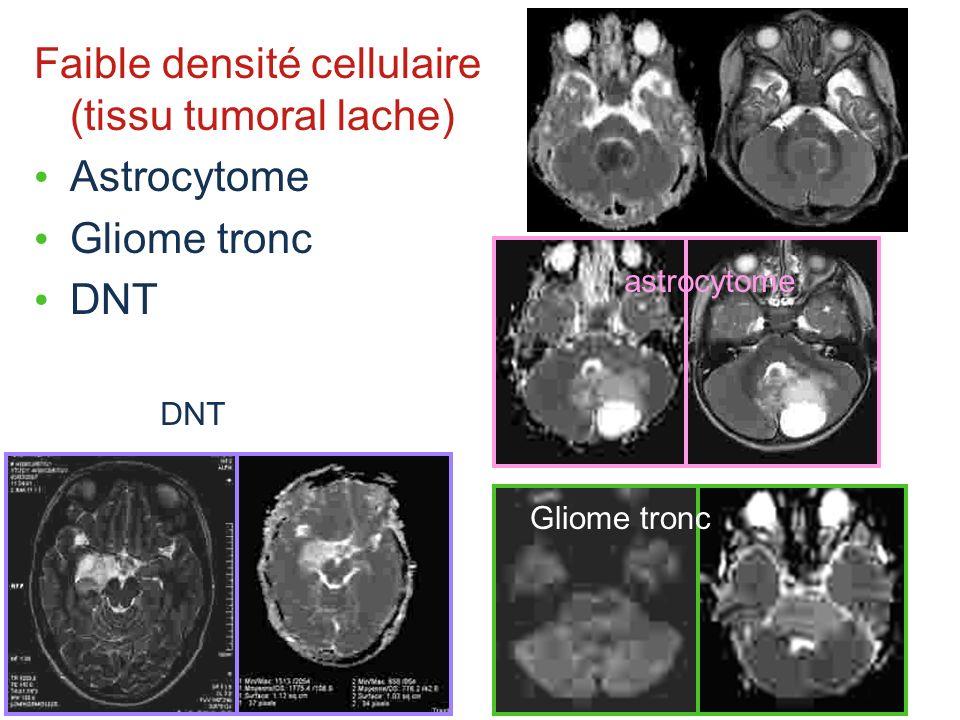 Faible densité cellulaire (tissu tumoral lache) Astrocytome
