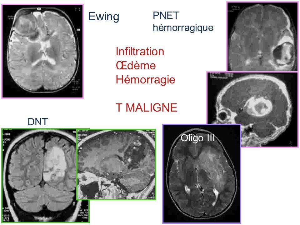 Ewing Infiltration Œdème Hémorragie T MALIGNE PNET hémorragique DNT