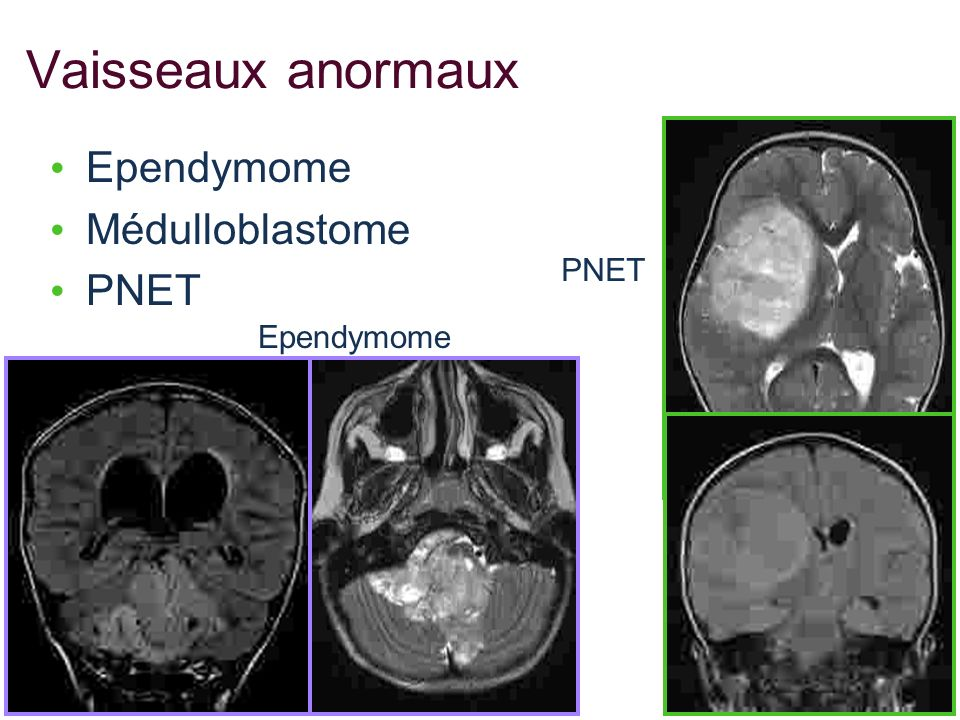Vaisseaux anormaux Ependymome Médulloblastome PNET PNET Ependymome