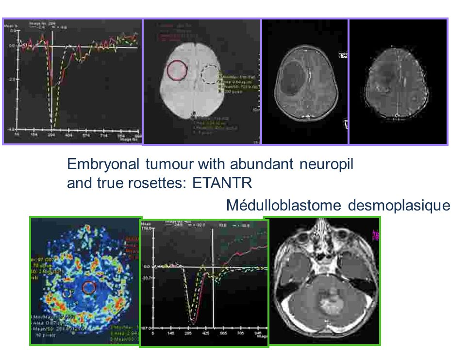 Embryonal tumour with abundant neuropil