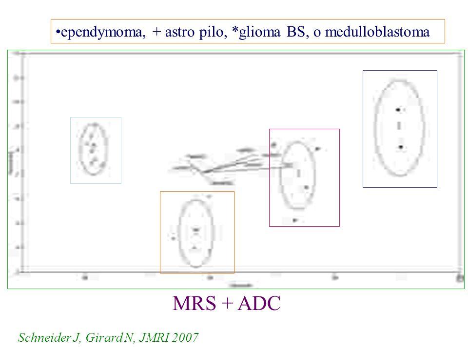 MRS + ADC ependymoma, + astro pilo, *glioma BS, o medulloblastoma