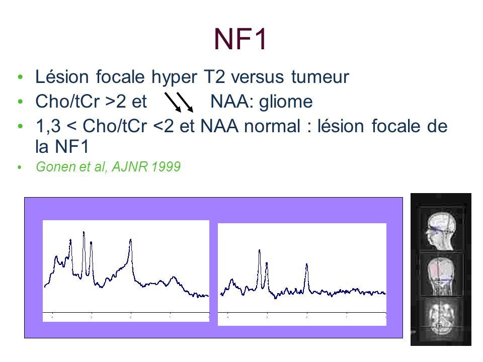 NF1 Lésion focale hyper T2 versus tumeur Cho/tCr >2 et NAA: gliome