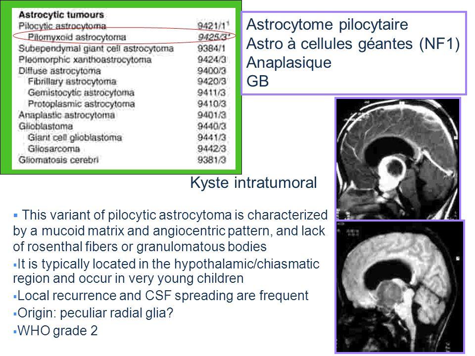 Astrocytome pilocytaire Astro à cellules géantes (NF1) Anaplasique GB