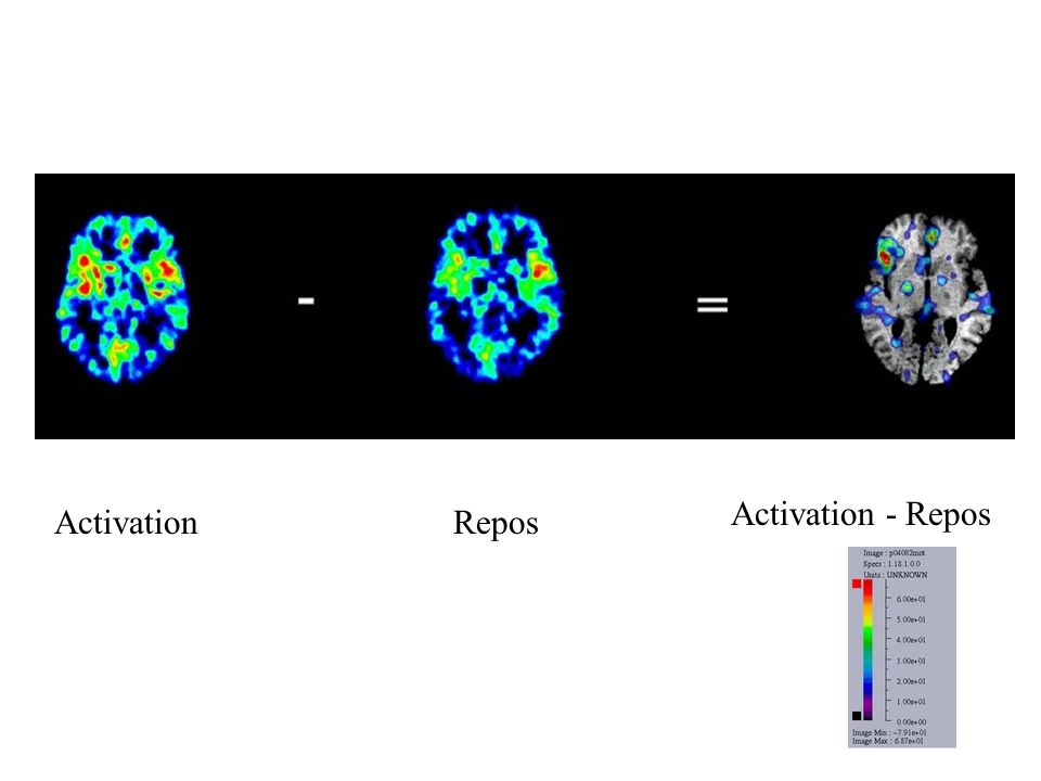 Activation - Repos Activation Repos