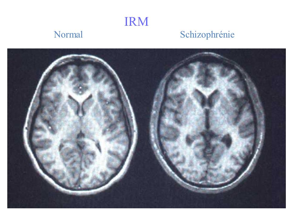 IRM Normal Schizophrénie