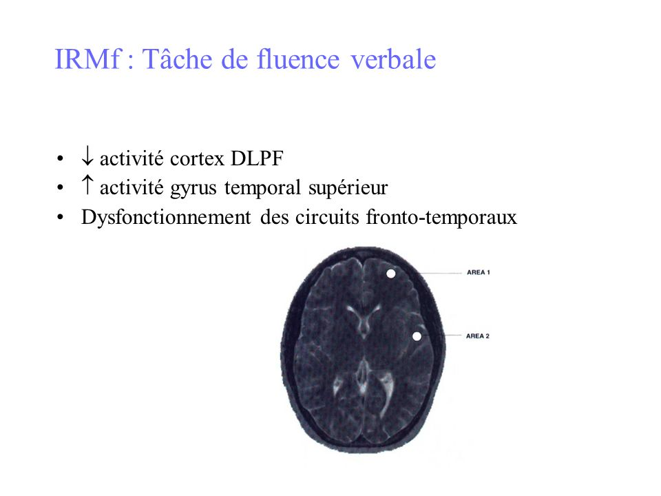 IRMf : Tâche de fluence verbale